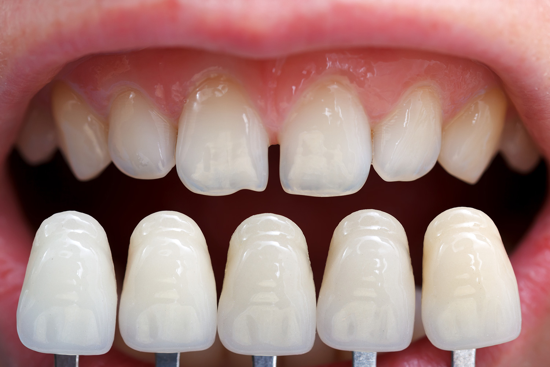 estetska-stomatologija