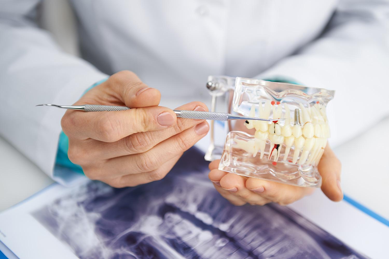 prevencija-i-dentalna-dijagnostika