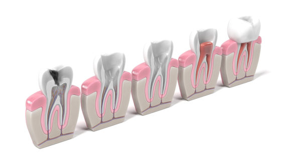restaurativna-stomatologija-i-endodoncija