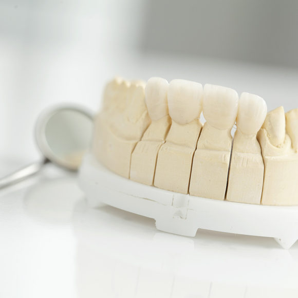 Prosthetic dentistry